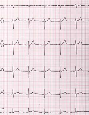 EKG auf Papier