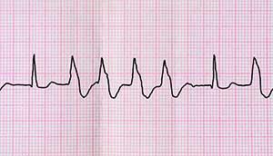 Folge von Extrasystolen am EKG sichtbar