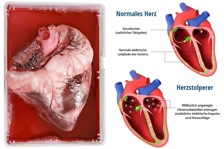 Menschliches Herz: Normaler Rhythmus und Herzstolperer