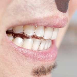 Mann trägt Zahnschutz gegen Bruxismus