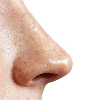 Nase in Seitenansicht